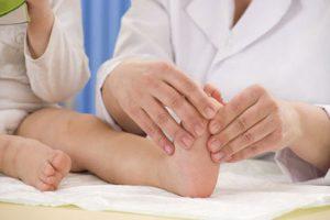 bàn chân dẹt ở trẻ